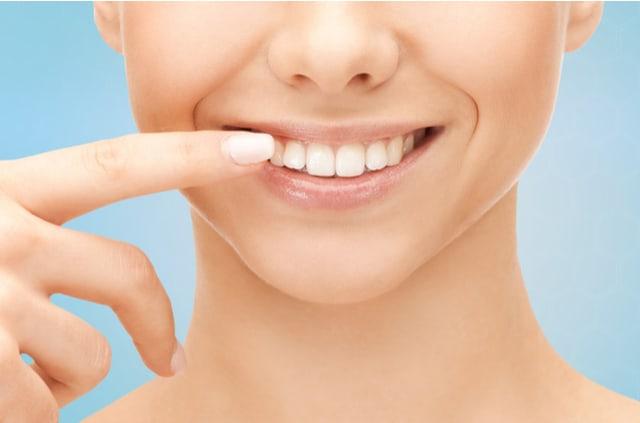ציפוי חרסינה לשיניים – האם הוא עדיף על ציפויים אחרים?