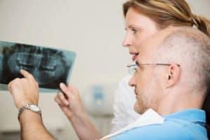 למי מיועדת השתלת שיניים?