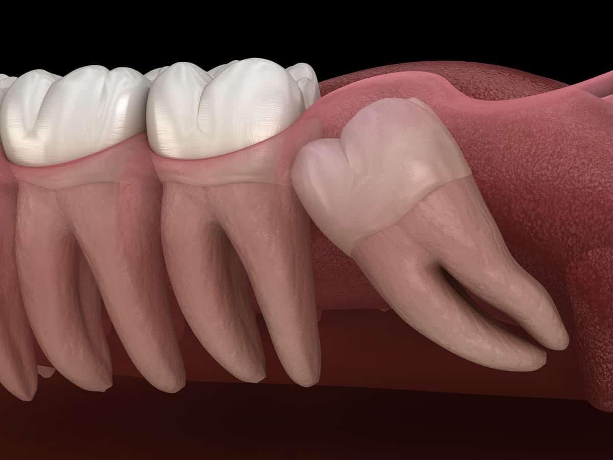 על תופעת השיניים הכלואות