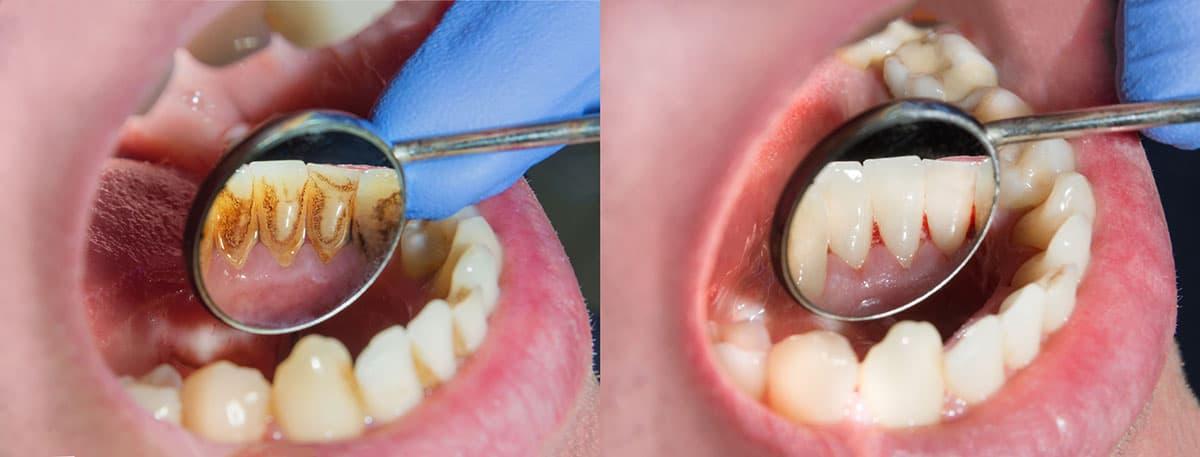 ניקוי עמוק להסרת אבנית בשיניים