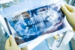 השתלת עצם בפה (לסת תחתונה ועליונה) לשתל