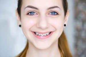 כיצד יכולים בני הנוער לשמור על החיוך הזוהר שלהם?