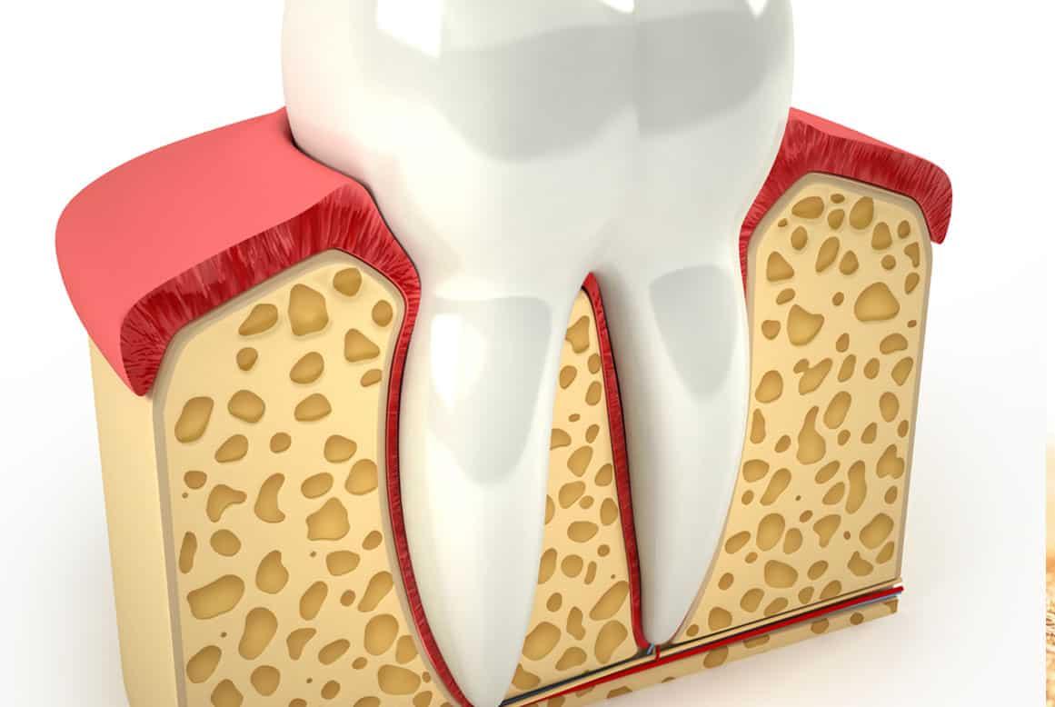 מורסת שיניים – מהי?