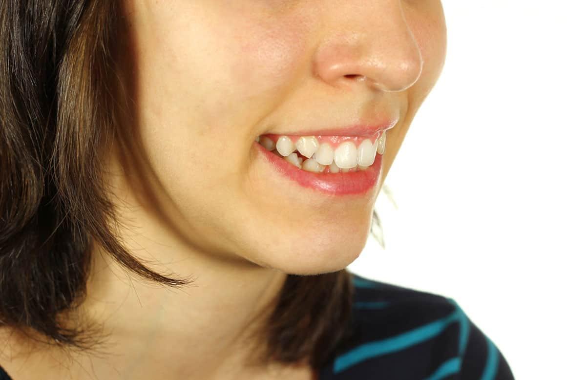 שיניים צהובות – מהם הגורמים לשיניים צהובות?