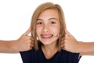 רסן ליישור שיניים