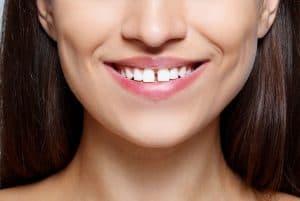 הלבנת שיניים   שיניים לבנות