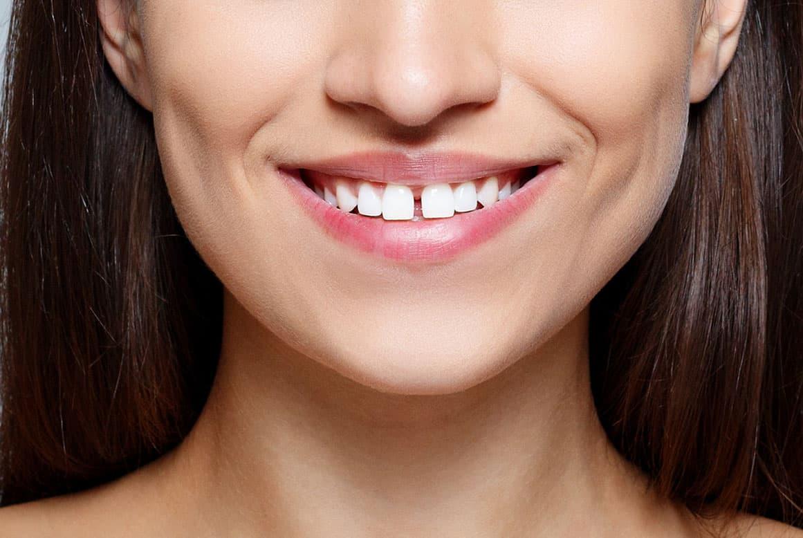 רווח בשיניים – מראה חינני או ראוי לטיפול?