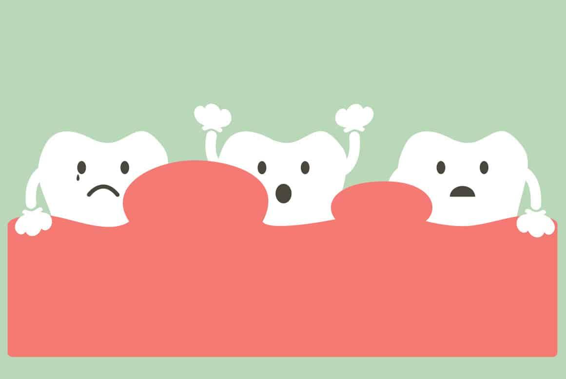 מהי שן בינה מכוסה בחניכיים ואיך מטפלים בה ? האם עלולה להתפתח דלקת בשן בינה?