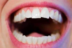 שיקום הפה