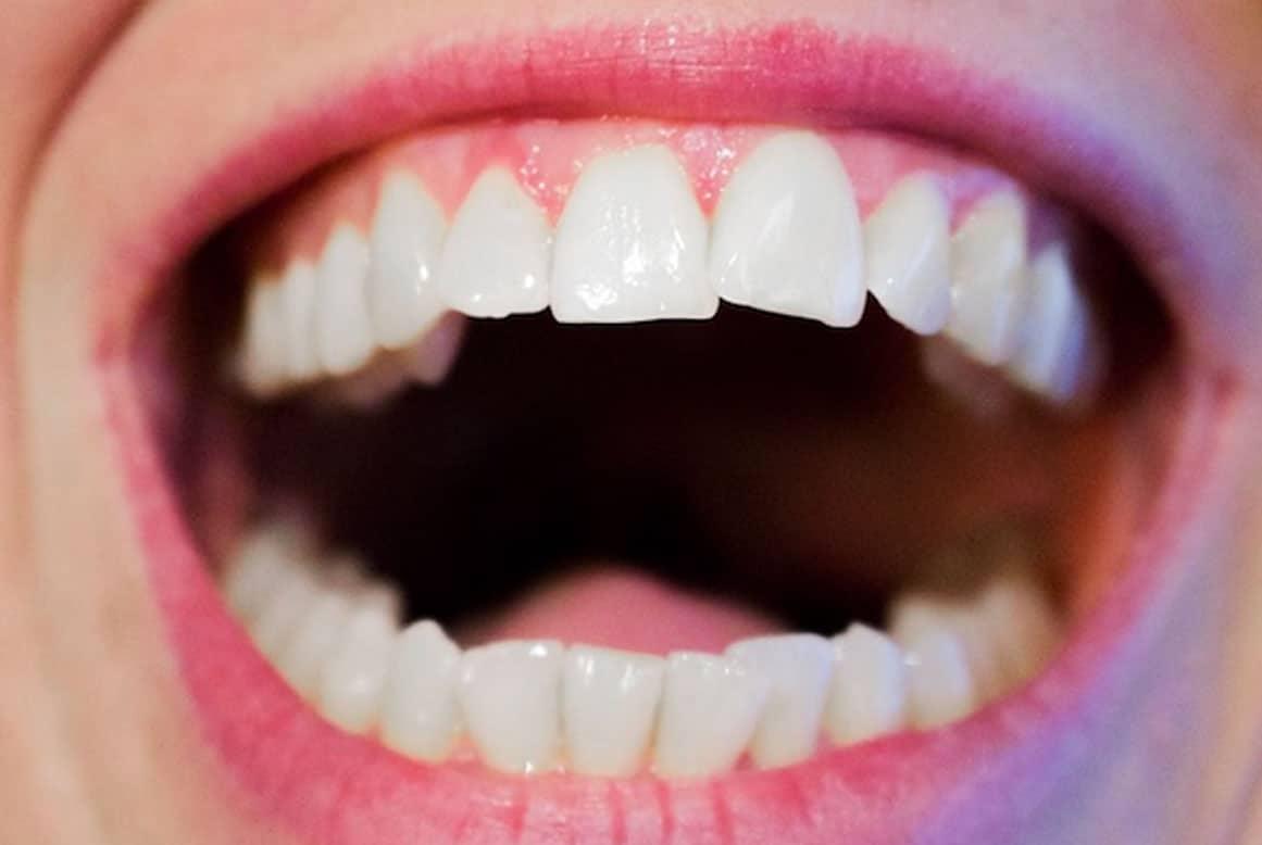 לעשות את זה בשושו – כל מה שחשוב לדעת על יישור שיניים פנימי