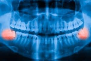 צילומי שיניים -צילום רנטגן שן בינה