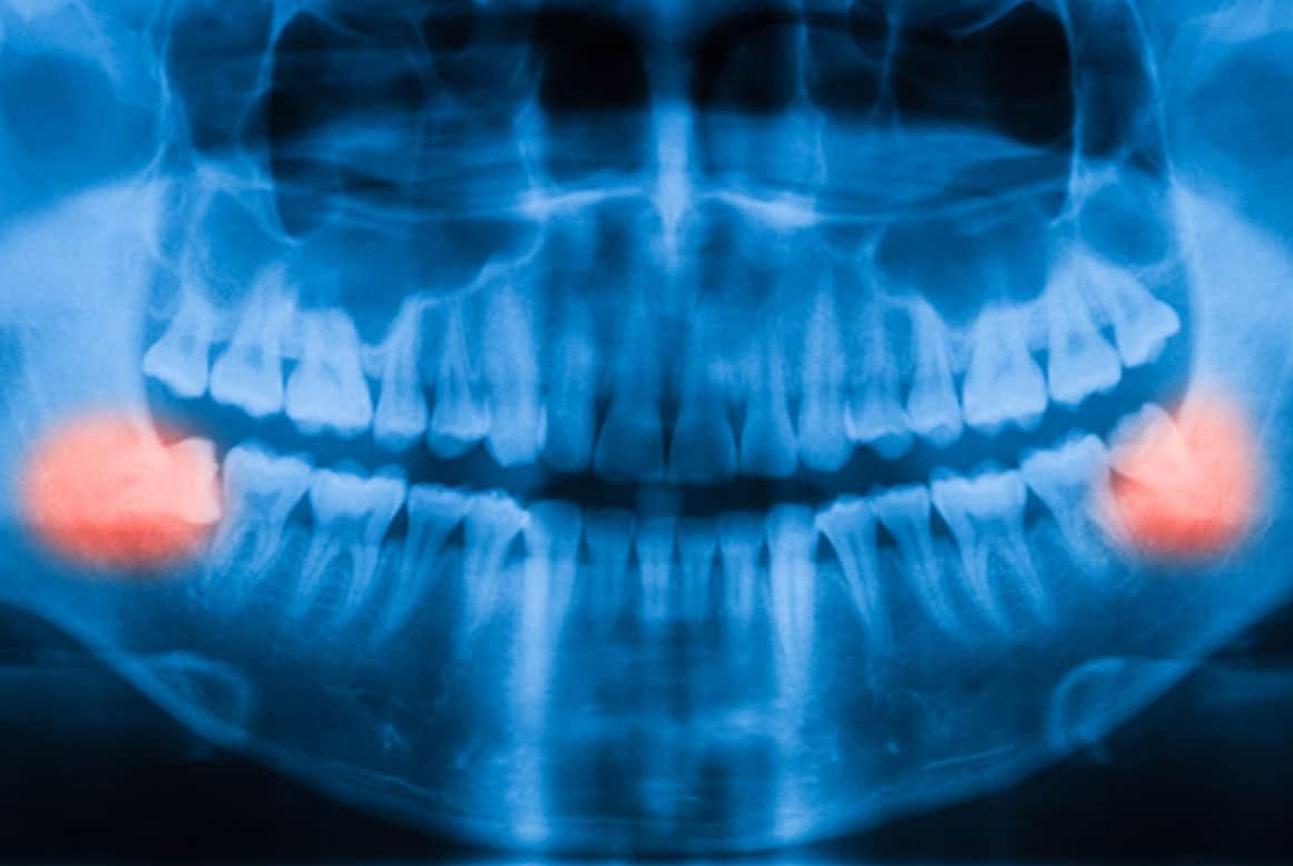 המדריך המלא לעקירת שן בינה קרובה לעצב
