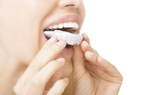 הלבנת שיניים ביתית – הטרנד הלבן