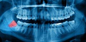 שין בינה מכוסה | שן בינה כלואה