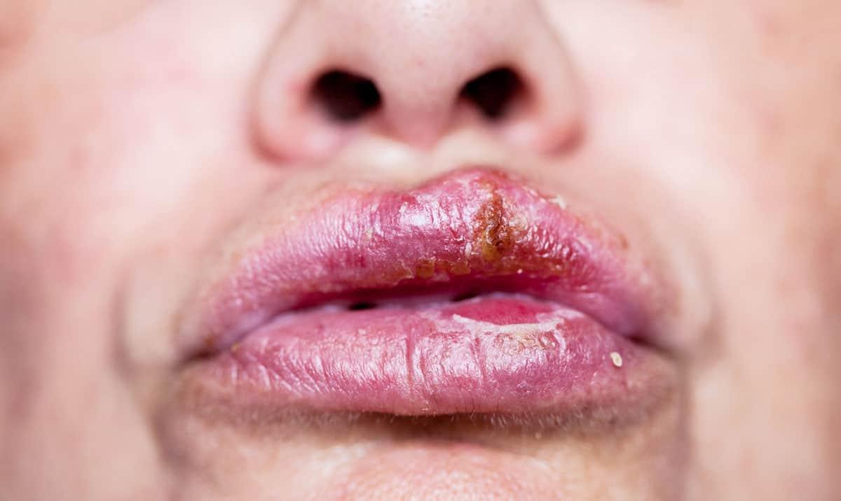פציעות טראומטיות של השפתיים והלשון