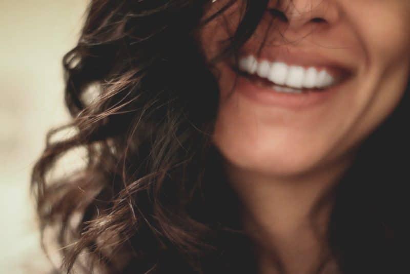 ציפויים לשיניים