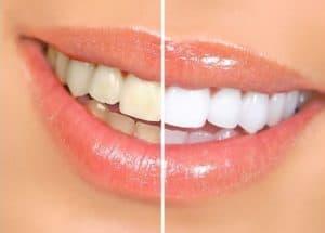 הלבנת שיניים – כל מה שצריך לדעת