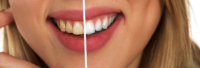 4 טיפים לשיניים לבנות
